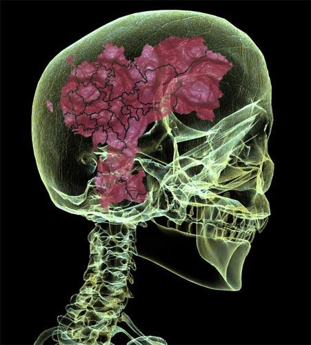 brainonchina.jpg